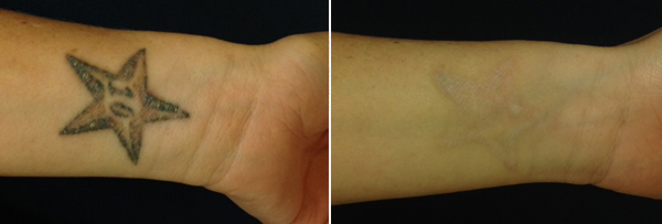 before and after photo of a starfish tattoo with a number 10, followed by it being removed