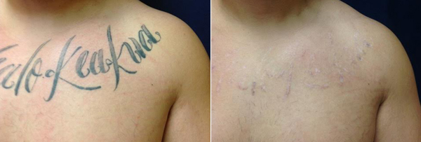 the first photo shows a tattoo with text across someones upper chest, the second is the tattoo removed