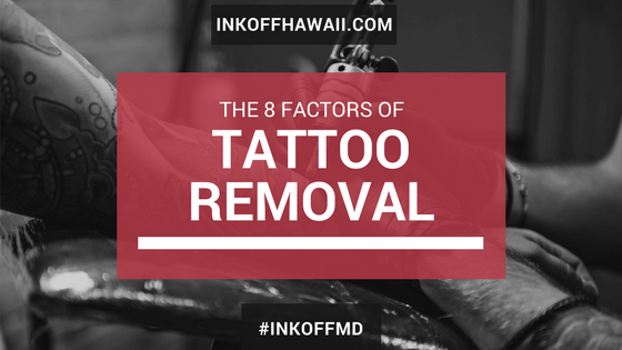 8 Factors of Tattoo Removal