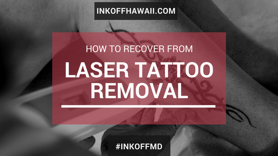 Person receiving laser tattoo removal.