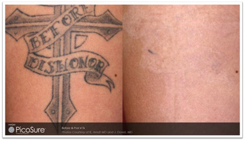 Tattoo Removal Hawaii